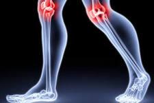 Empresa rusa-británica pone en venta un medicamento innovador para la artritis