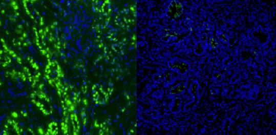 Científicos desarrollan un nuevo fármaco que puede vencer el cáncer de páncreas en 6 días