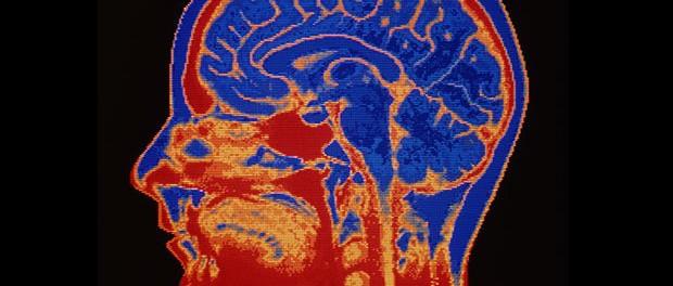 Futurólogos: implantes cerebrales permitirán trabajar mejor y ganar más