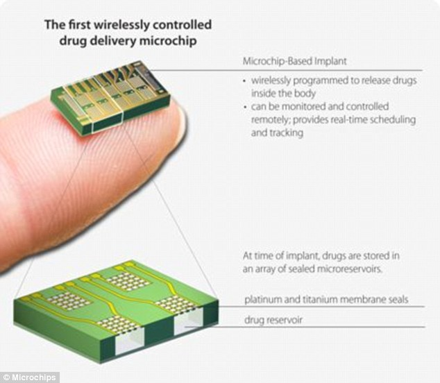 contraceptive-implant